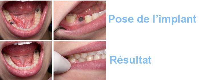 implants_dentaires_avap