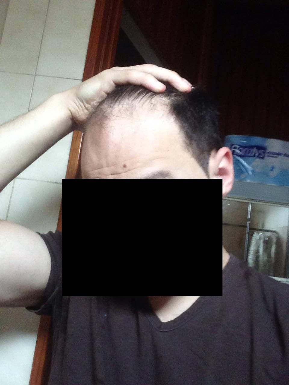 international hair loss forum combien de greffons ais je besoin et quelle clinique. Black Bedroom Furniture Sets. Home Design Ideas