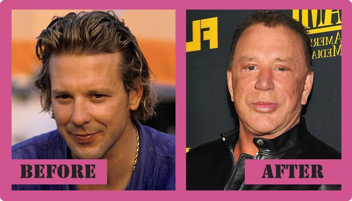 Mickey-Rourke-Plastic-Surgery-Before-And-After